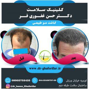 نمونه کار کاشت مو در ارومیه3